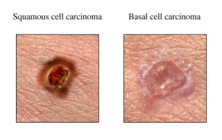 Comparisson of basal cell carcinoma (BCC) and squamous cell carcinoma (SCC)